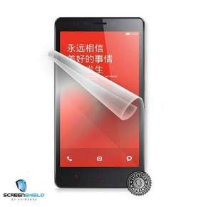 ScreenShield fólie na displej pro Xiaomi Redmi Note Pro