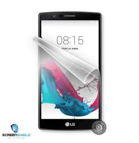 ScreenShield fólie na displej pro LG H815 G4