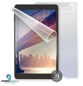 ScreenShield fólie na celé tělo pro IGET Smart G102
