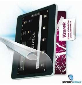 ScreenShield fólie na displej + skin voucher (včetně poplatku za dopravu k zákazníkovi) pro Emgeton Consul One