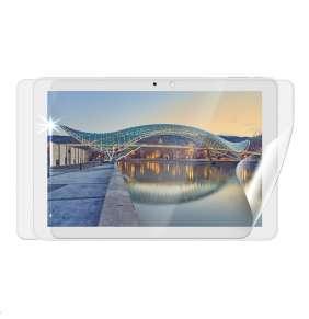 Screenshield fólie na celé tělo pro IGET Smart W101