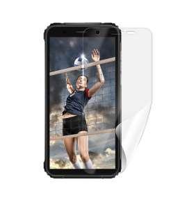Screenshield IGET Blackview GBV5100 folie na displej